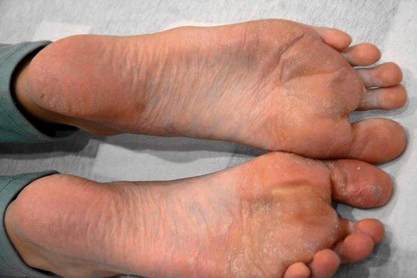 láb psoriasis - 2 héttel és kezelés után